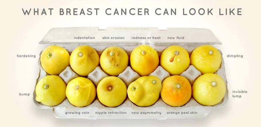 borstkanker-symptomen