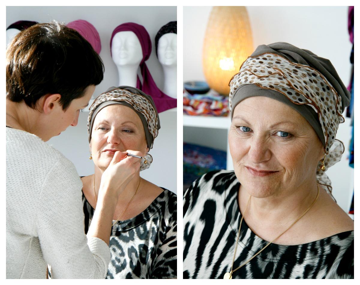 stralen tijdens chemo: voor & na