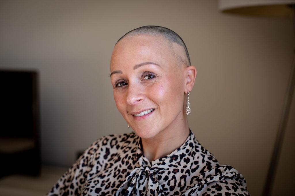 alopecia wenkbrauw wimpers uitval