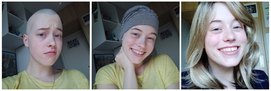 alopecia areata hair loss hats and scarves