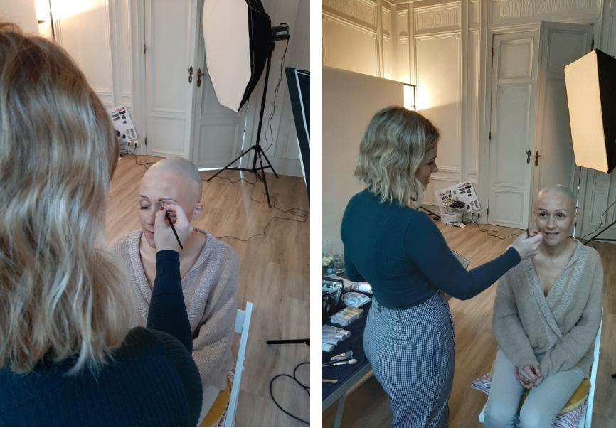pruik alopecia areata haarwerk kopen