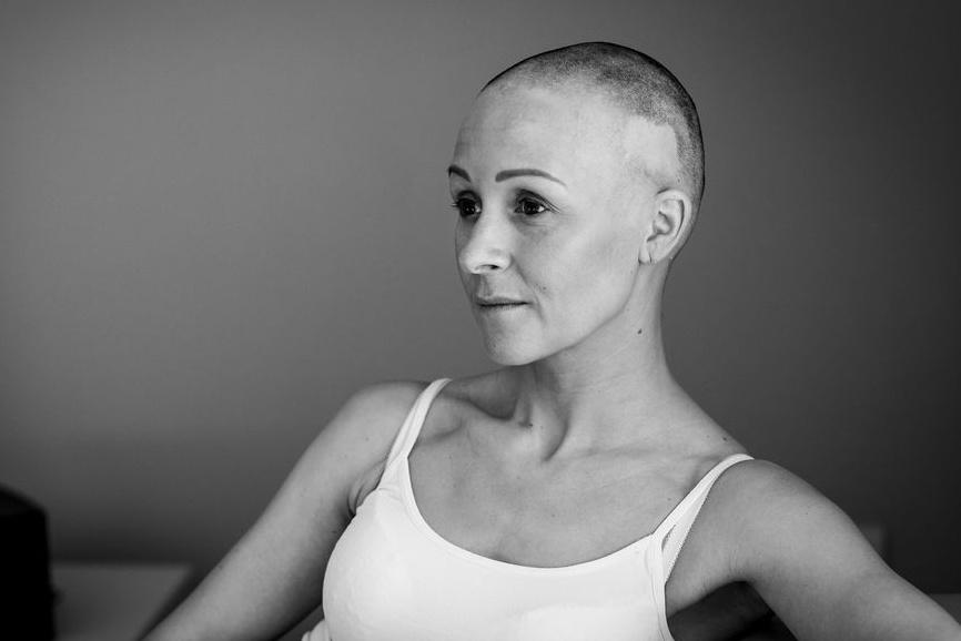 haarwerk alopecia pruik kiezen